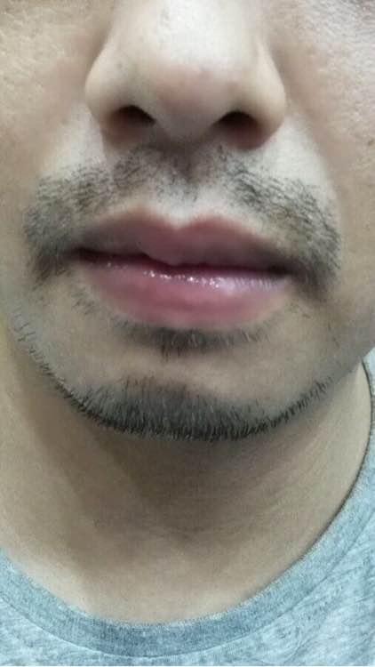 长胡须(有益于不生胡须的男性)类食物